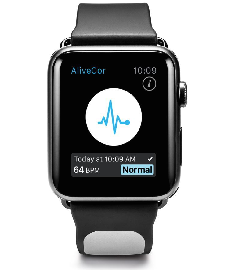 apple watch, stroke, kardia, health monitor, apple watch band, health apps, ecg, alivecor
